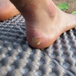 Wicked Heel Blister Outside Idyllwild